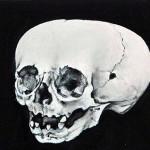 Phantom : Vanité, tête de mort de foetus